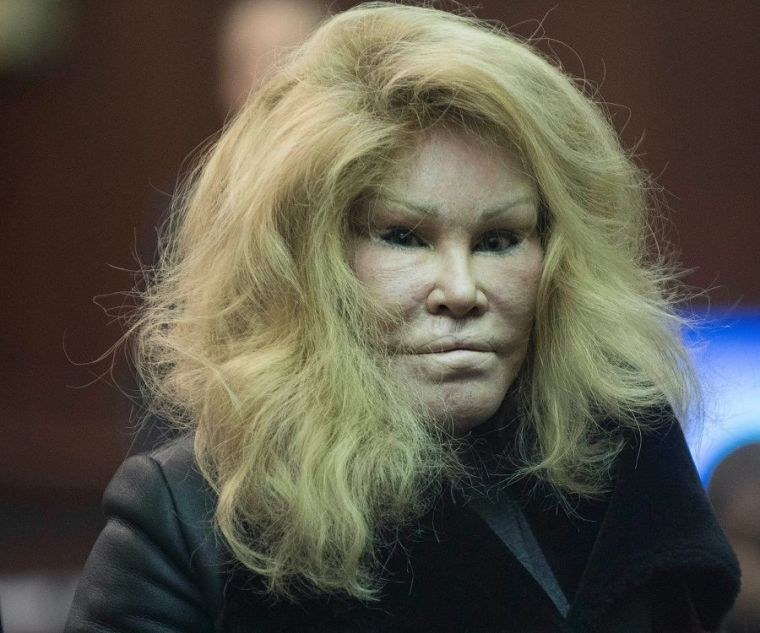 jocelyn-wildenstein-1